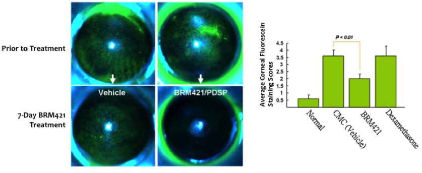 After BRM421 treatment, the green spots were decreased, which mean the less corneal injury, namely the recovered dry eye syndrome.